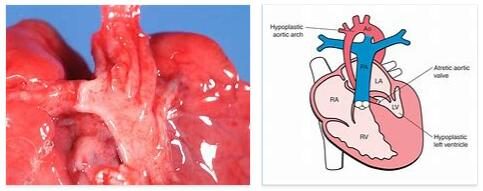 Aortic arch syndrome