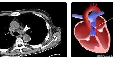 Aorto-pulmonary Window