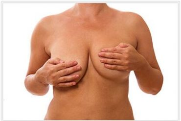 Disorders of the breasts